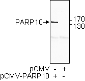 PARP-10 (human) monoclonal antibody (5H11) Western blot