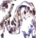 ARTS polyclonal antibody Immunohistochemistry
