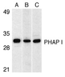 PHAP I (CT) polyclonal antibody Western blot