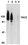 ADAM17 (CT) polyclonal antibody Western blot
