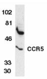 CCR5 (NT) polyclonal antibody Western blot