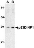 p53 DINP1 SIP polyclonal antibody Western blot