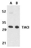 TACI polyclonal antibody Western blot