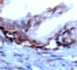 PSCA polyclonal antibody Immunohistochemistry