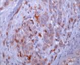 Osteopontin monoclonal antibody (53) Immunohistochemistry