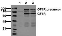 [pTyr1316]IGF-1 receptor monoclonal antibody (2B9) Western blot