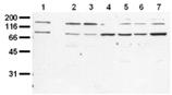 Insulin receptor monoclonal antibody (9H4) Western blot