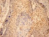 [pSer727]Stat3 monoclonal antibody (23G5) Immunohistochemistry
