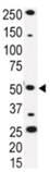 IRAK-4 polyclonal antibody Western blot