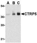 CTRP5 polyclonal antibody Western blot