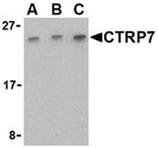 CTRP7 polyclonal antibody Western blot