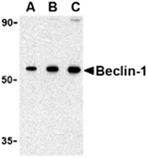 Beclin-1 polyclonal antibody Western blot