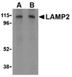 LAMP2 polyclonal antibody Western blot