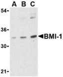 BMI-1 polyclonal antibody Western blot