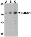 SOCS1 polyclonal antibody Western blot