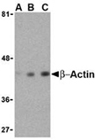 β-Actin polyclonal antibody Western blot