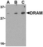DRAM polyclonal antibody Western blot