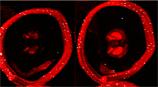 Opioid receptor μ polyclonal antibody Immunohistochemistry