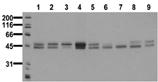 [pTyr279]GSK-3α and [pTyr216]GSK-3β monoclonal antibody (6D3) Western blot