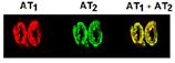 Angiotensin II receptor AT1 polyclonal antibody (DY-682 conjugate) Immunohistochemistry