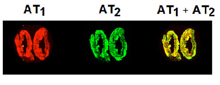 Angiotensin II receptor AT1 polyclonal antibody (DY-800 conjugate) Immunohistochemistry