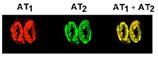 Angiotensin II receptor AT2 polyclonal antibody (DY-682 conjugate) Immunohistochemistry