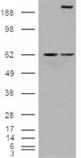 Notch1 monoclonal antibody (3E12) Western blot