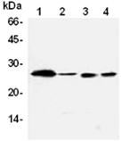 Bcl-2 monoclonal antibody (83-8B) Western blot
