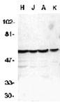 Caspase-10 polyclonal antibody Western blot