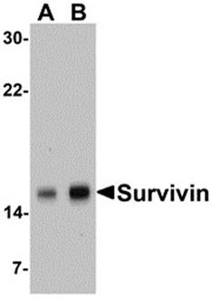 Survivin polyclonal antibody Western blot