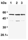 TRAF6 polyclonal antibody Western blot