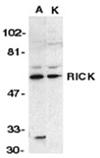 RICK polyclonal antibody Western blot