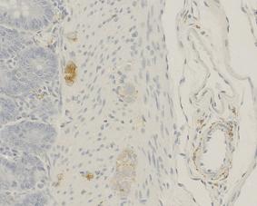 α-CGRP (human) monoclonal antibody (4) Immunohistochemistry