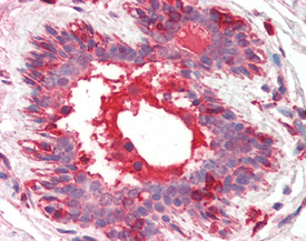 HGF/SF monoclonal antibody (7-2) Immunohistochemistry
