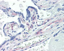 PDGF receptor β monoclonal antibody (42G12) Immunohistochemistry