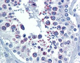 ADI-905-684 IHC2