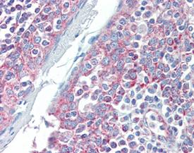 Smac/DIABLO monoclonal antibody (79-1-83) Immunohistochemistry