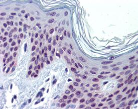 Pax3 monoclonal antibody (C2) Immunohistochemistry
