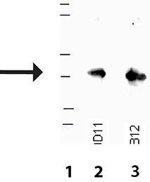 Matriptase (human), (recombinant) (His-tag) Western blot