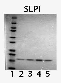 SLPI (human), (recombinant) (His-tag) SDS-PAGE