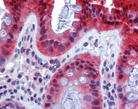 Caspase-7 monoclonal antibody (7-1-11) Immunohistochemistry