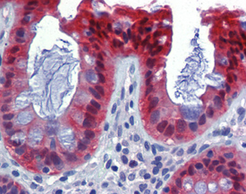 Caspase-7 monoclonal antibody (10-1-62) Immunohistochemistry