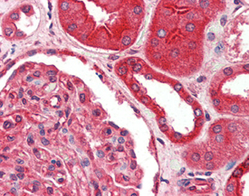 FADD polyclonal antibody Immunohistochemistry