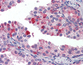 TAP1 polyclonal antibody Immunohistochemistry