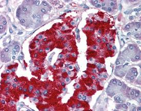 eIF2 α polyclonal antibody Immunohistochemistry