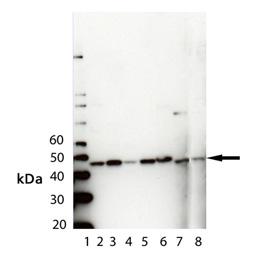 PDK1 polyclonal antibody Western blot
