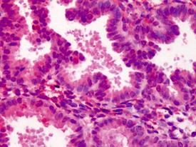 MEKK3 polyclonal antibody Immunohistochemistry