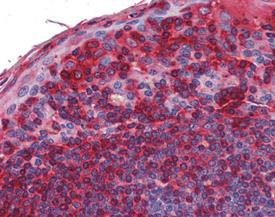TAK1 polyclonal antibody Immunohistochemistry