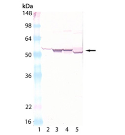 Cytochrome P450 polyclonal antibody Western blot