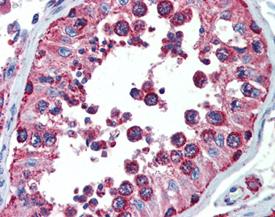 Cpn10 polyclonal antibody Immunohistochemistry